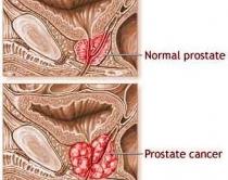 prostata mjekimi